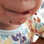 赤ちゃん・子どものあせも対策。顔、背中、お腹がかゆいなら断然コレ!